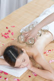 A Chinese medicine cupping of the young lady. A young lady receiving  Chinese medicine cupping  at spa salon, indoors Stock Photos