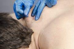 Chinesische Medizin, die Akupunktur tut Lizenzfreies Stockfoto