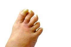 Chiodi non sani malati sul piede di un uomo Immagine Stock