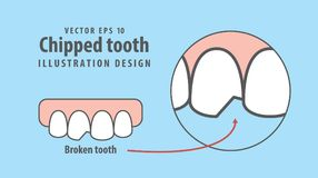 Chipped tooth illustration vector on blue background. Dental   Stock Images