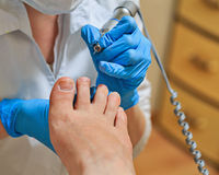 chiropodie Stock Afbeelding
