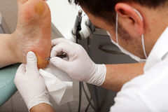 Chiropodists working with a scalpel Stock Photography