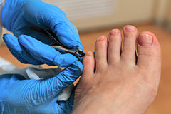 Chiropody Royalty Free Stock Photos