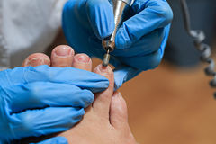 Chiropody Royalty Free Stock Image