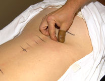 Chiropraktor Lizenzfreie Stockfotografie