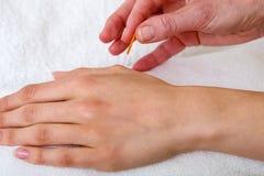 Chiropratico che applica gli aghi di agopuntura. Fotografia Stock