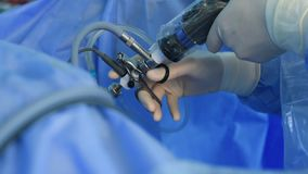 Chirurg wr?cza wykonywa? laparoscopic operacj?, zdjęcie wideo