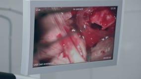 Chirurgia dell'occhio sullo schermo di medici Chirurgia di rimozione della cataratta Fine in su video d archivio