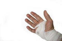 Chirurgia della mano Fotografie Stock