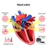 Chirurgia della valvola cardiaca Fotografia Stock
