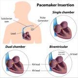 Chirurgia di inserzione dello stimolatore cardiaco Fotografie Stock