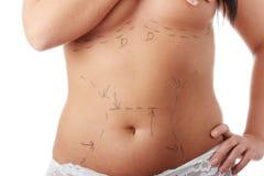 Chirurgia estetica Fotografia Stock Libera da Diritti
