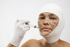 Chirurgia plastica Immagini Stock