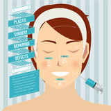 Chirurgia plastica Fotografie Stock