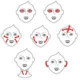 Chirurgia plastica del collo e del fronte Illustrazione di Stock