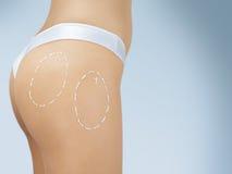 Chirurgia plastica dell'anca Fotografie Stock Libere da Diritti