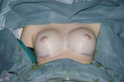 chirurgie Royalty-vrije Stock Afbeelding