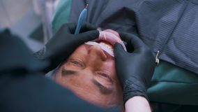 Chirurgie dentaire en gros plan pour l'homme banque de vidéos