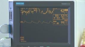 Chirurgie in einem Operationsraum stock video