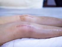 Chirurgie van de littekens de Chirurgische Knie Stock Afbeelding