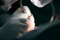 Chirurgische Operatie Stock Afbeelding