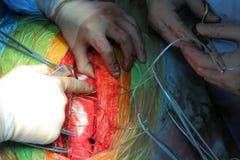 Chirurgische wond en het werk van chirurgen Stock Fotografie