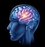 Chispa del intelligen de la corteza de los lóbulos de la pista del cerebro del genio Imagen de archivo libre de regalías