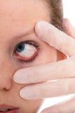 Chiuda su da un occhio femminile con la congiuntivite Fotografia Stock Libera da Diritti
