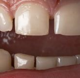 Chiuda in su dei denti umani Fotografie Stock Libere da Diritti