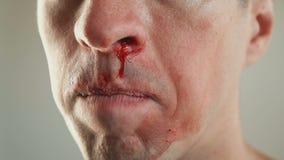Chiuda su del giovane che pulisce il sangue dal naso Il concetto della violenza video d archivio