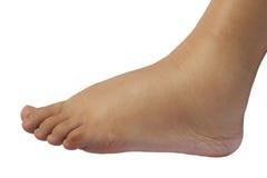 Chiuda su del piede gonfio di una donna incinta da 35 settimane immagine stock
