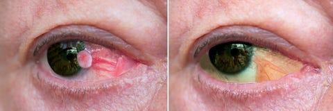 Chiuda su dell'occhio con carcinoma immagine stock
