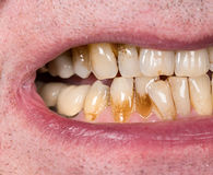 Chiuda su della bocca con le macchie marroni della placca Immagine Stock