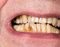 Chiuda su della bocca con le macchie marroni della placca Fotografia Stock