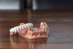 Chiuda su delle protesi dentarie con i denti dell'oro Immagini Stock