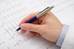 Chiuda su di un medico della mano su una carta dell'elettrocardiogramma Immagine Stock Libera da Diritti