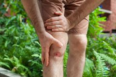 Chiuda su su un ginocchio umano raschiato emorragia dopo l'incidente di funzionamento Ferita dal motociclo dello scarico fotografia stock libera da diritti