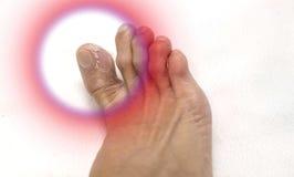 Chiuda sugli uomini del piede che sbucciano la pelle Fotografia Stock