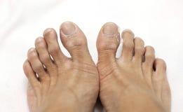 Chiuda sugli uomini del piede che sbucciano la pelle Fotografie Stock