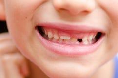 Chiuda sui denti di latte mancanti sorridenti della bocca del bambino Immagini Stock