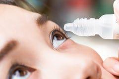 Chiuda sui gocciolamenti nel farmaco della cataratta dell'occhio Fotografia Stock Libera da Diritti