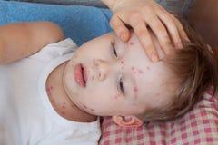 Chiuda sul ragazzo con la varicella Immagini Stock
