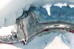 Chiuda sulla protesi dentaria parziale su una muffa del gesso Fotografia Stock Libera da Diritti