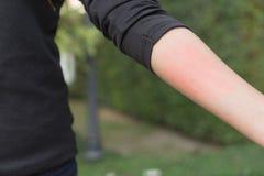 Chiuso su del braccio della donna con pelle sensibile rossa, sym di allergia alimentare Fotografie Stock Libere da Diritti