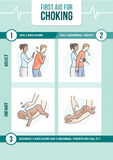 Choking first aid. First aid procedure for choking and heimlich maneuver for adults and infants Royalty Free Stock Image
