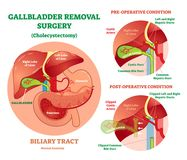 Cholecystectomy - Gallbladder removal surgery, anatomical vector illustration diagram with operative conditions. Biliary tract medical scheme Stock Images