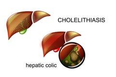 Cholelithiasis. Stones in the gallbladder. Stock Photo