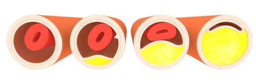 Cholesterin - 4 Adern Stockbilder