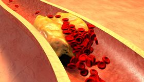 Cholesterin blockierte Arterie, medizinisches Konzept Stockfotografie