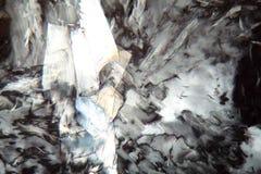 Cholesterinkristalle unter einem Mikroskop Stockfotografie